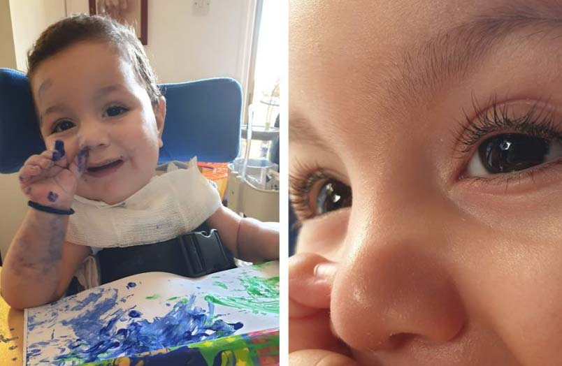 Little Antonis needs help to overcome a very rare disease