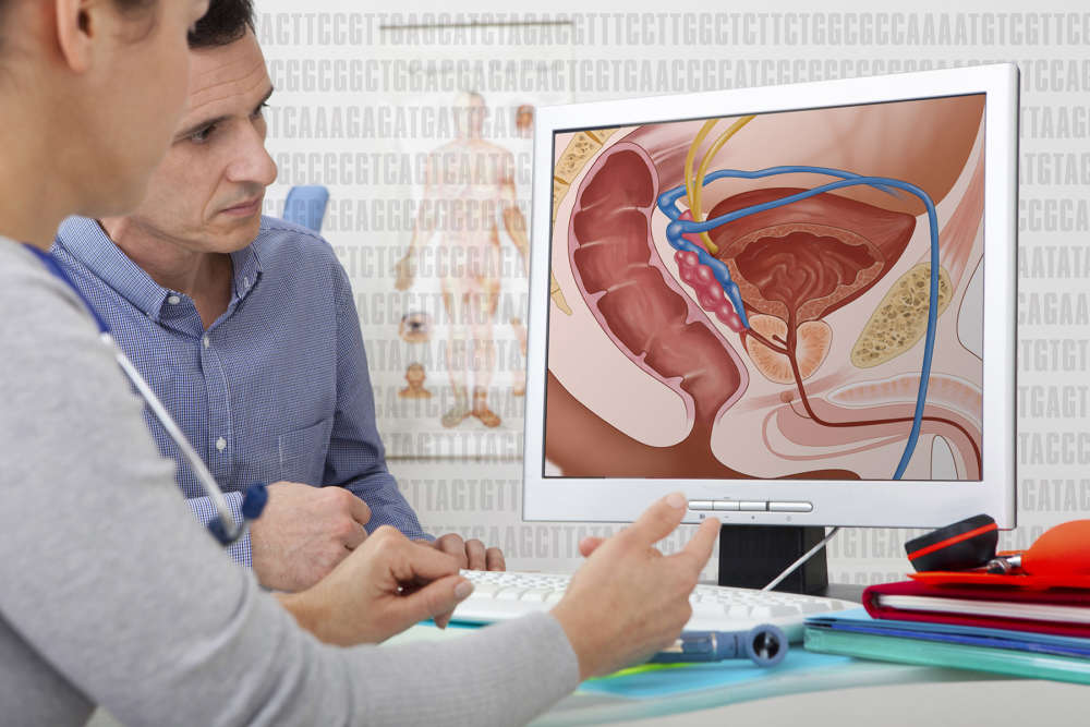 Prostate cancer deaths in Cyprus close to EU average