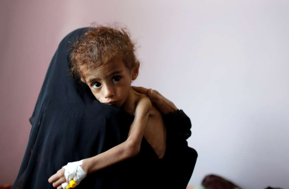 Yemeni children die as warring sides block aid deliveries - UNICEF