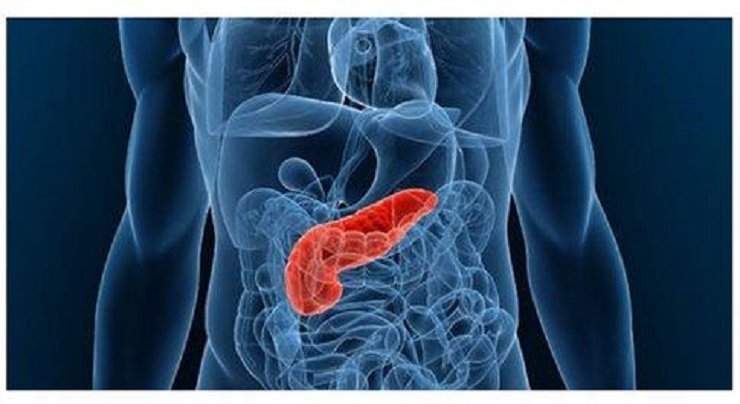 80 people diagnosed with pancreatic cancer every year in Cyprus